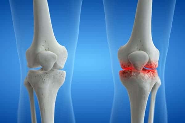 arthrose genou operation gonarthrose paris institut du rachis paris chirurgien du rachis specialiste dos paris