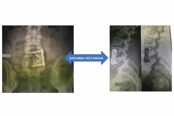 athrodese lombaire l4 l5 laterale voie anterieure institut du rachis paris chirurgien du rachis specialiste dos paris