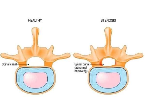 canal lombaire etroit stenose lombaire severe stenose lombaire et invalidite institut rachis paris chirurgien rachis paris dr delambre pr poignard
