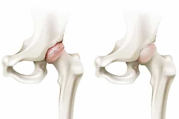 coxarthrose arthrose hanche paris arthrose hanche traitement institut du rachis paris chirurgien du rachis specialiste dos paris