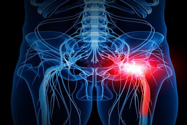 cruralgie hanche cruralgie jambe institut rachis paris chirurgien dos chirurgien rachis paris