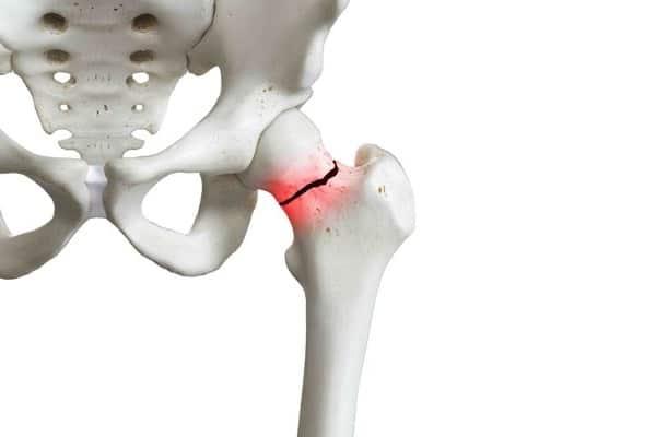 fracture col du femur col du femur operation institut rachis paris chirurgien dos chirurgien rachis paris