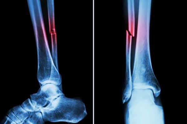 fractures de la cheville fracture de la cheville symptomes fracture membres institut rachis paris chirurgien specialiste rachis paris