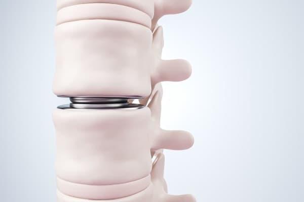 La prothèse discale (lombaire & cervicale)