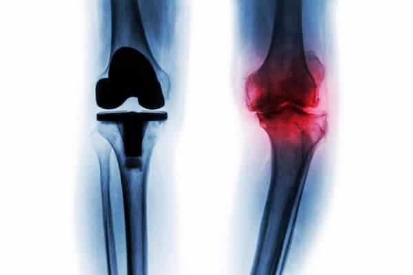 prothese genou paris chirurgie genou paris institut du rachis parisien docteur jerome delambre professeur alexandre poignard
