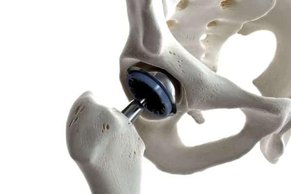 prothese hanche paris prothese totale hanche chirurgie hanche paris institut du rachis parisien dr jerome delambre professeur alexandre poignard