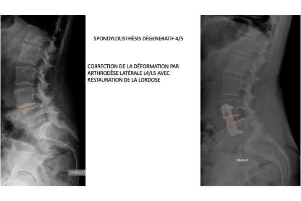 spondylolisthesis degeneratif traitement chirurgien specialiste rachis dos paris dr delambre pr poignard dr arvieu dr queinnec pr allain institut rachis paris