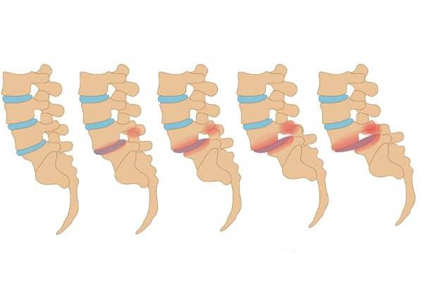spondylolisthesis paris spondylolisthesis degeneratif glissement vertebre glissement de vertebre traitement institut rachis paris chirurgien specialiste dos paris