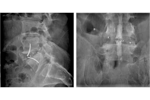 arthrodese lombaire radiographie arthrose lombaire radio que faire chirurgie voie anterieure chirurgien dos paris specialiste rachis paris institut rachis parisien
