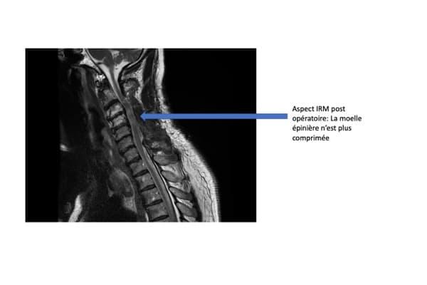 myelopathie cervicale arthrosique irm post operatoire arthrose chirurgien rachis paris chirurgien dos institut rachis paris