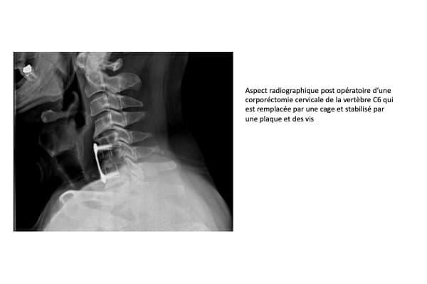 myelopathie cervicale arthrosique radio post operatoire corporectomie cervicale v6 arthrose chirurgien rachis paris chirurgien dos institut rachis paris