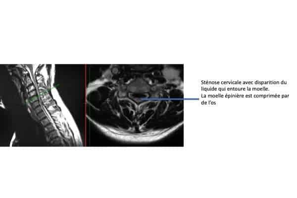 myelopathie cervicale arthrosique stenose cervicale arthrose chirurgien rachis paris chirurgien dos institut rachis paris